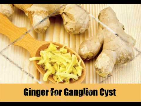 Ganglion Cyst Treatment Natural Cure