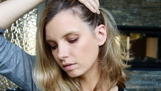 My Post-Pregnancy Hair Loss | A Model Recommends