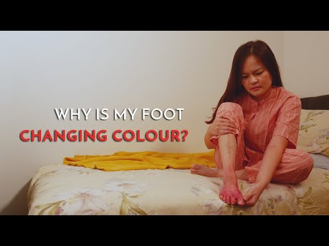why-is-my-foot-changing-colour?---georgina-tay,-singapore-podiatrist