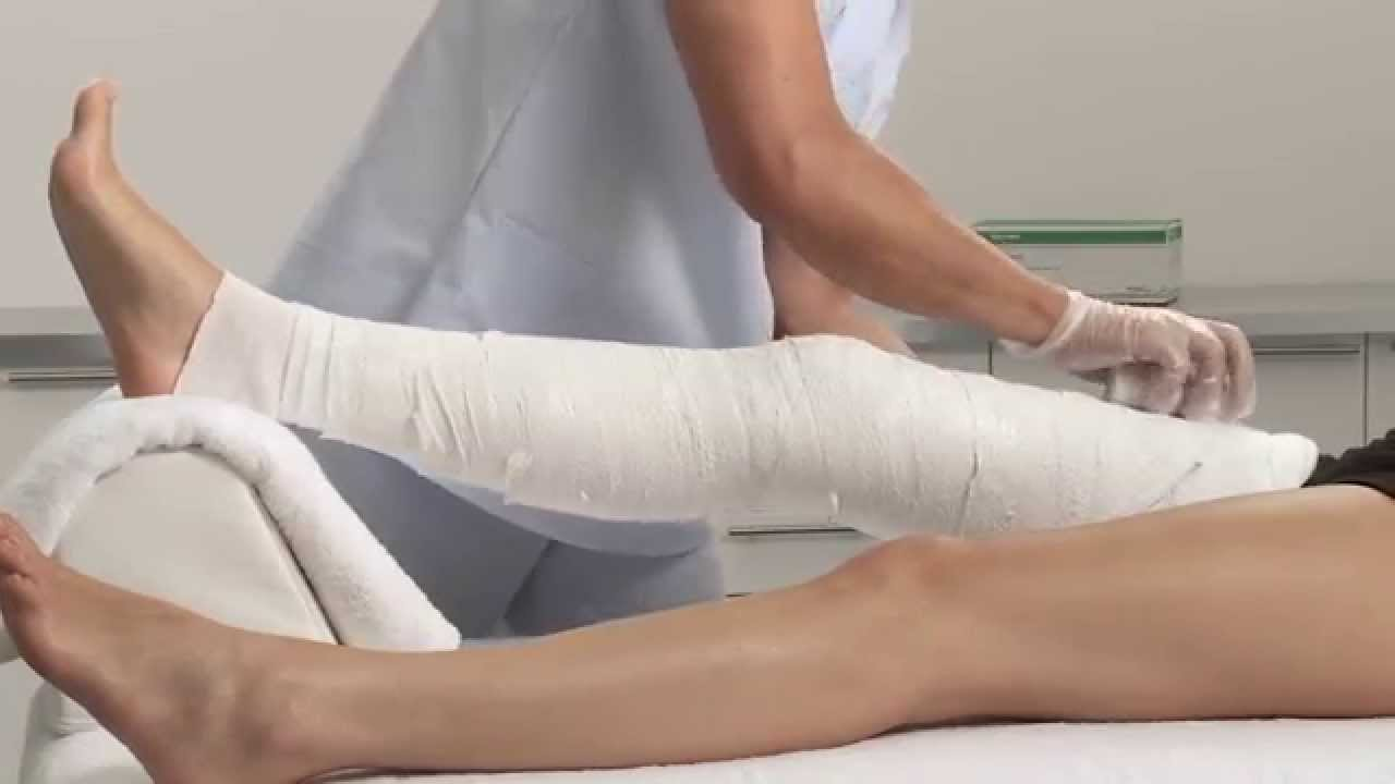 plaster of paris knee circular cast application youtube