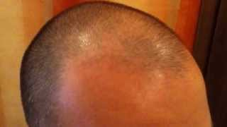Day 162 Hair Growth Experiment with Rogaine Minoxidil 5%