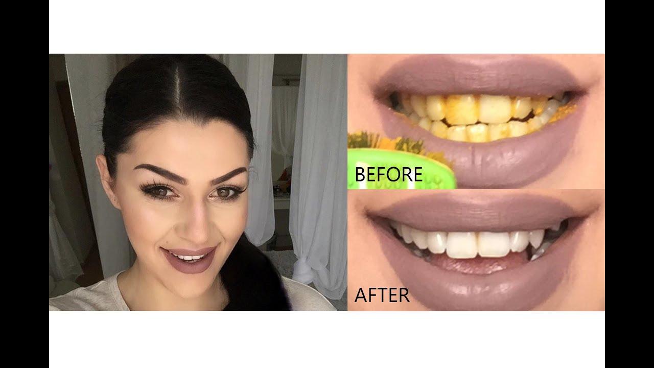 Lasersko izbeljivanje zuba iskustva