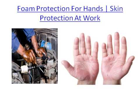 Laundry Sanitiser | Laundry Disinfectant | Body Fungal Infection | Fungal Infections On Skin