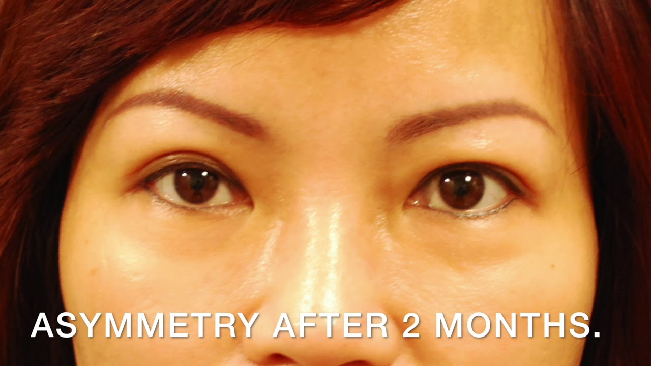 Eyelid Surgery for the Asian Eye San Jose - Double Eyelid Surgery