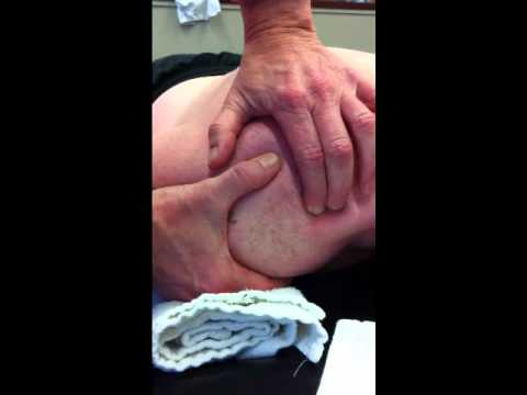 facilitation of levator scapulae from C2/3 dysfunction