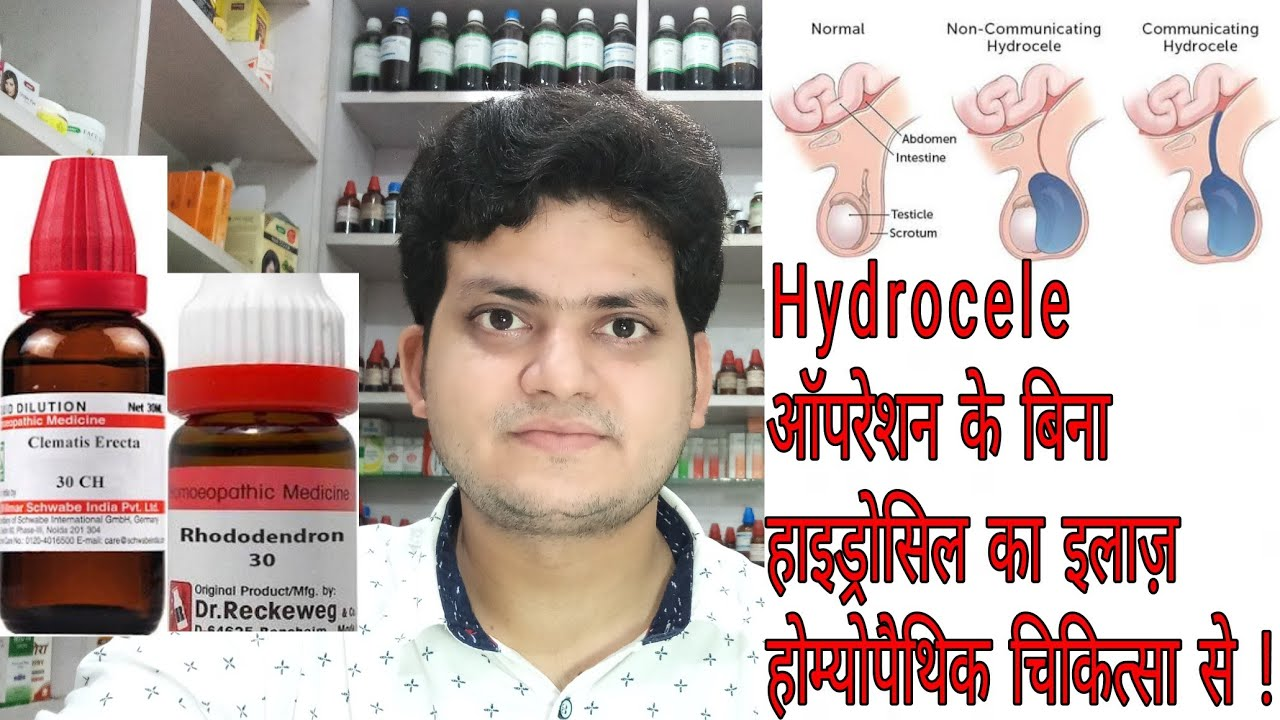 Hydrocele ! Homeopathic medicine for Hydrocele ? explain !