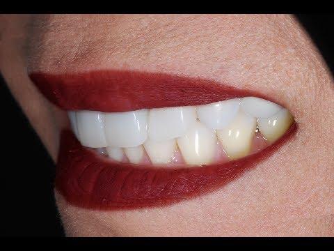 Video Procedure of Placing Dental Veneers with Dental Implant at Cosmetic Dental Associates