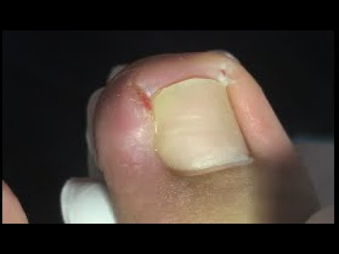 How to keep away from ingrown nail