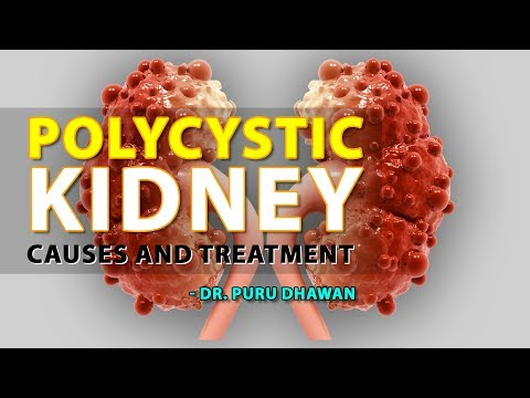 polycystic-kidney---causes-and-treatment