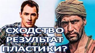 Тимур Еремеев оправдался за пластическую операцию!  (20.02.2018)