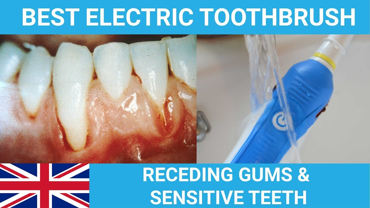 Best Electric Toothbrush For Receding Gums & Sensitive Teeth