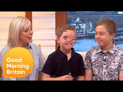 Instagram Has Apologised For Removing Photo Of Boy With Facial Disfigurement   Good Morning Britain
