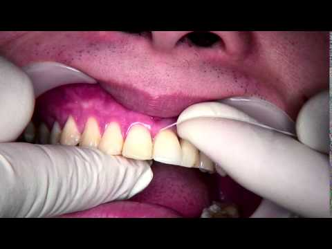 Using floss around dental implant