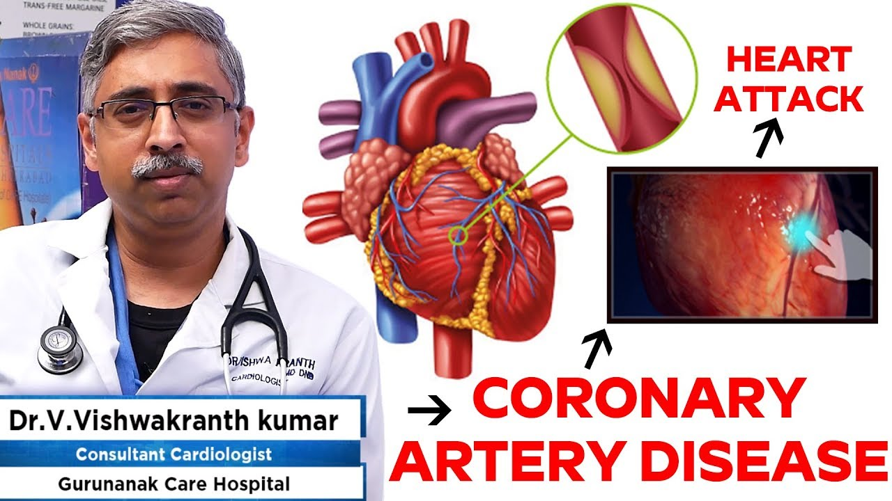 How to diagnose coronary heart diseases | Cardiologist Dr. V. Vishwakranth Kumar Care Hospitals #cardiology