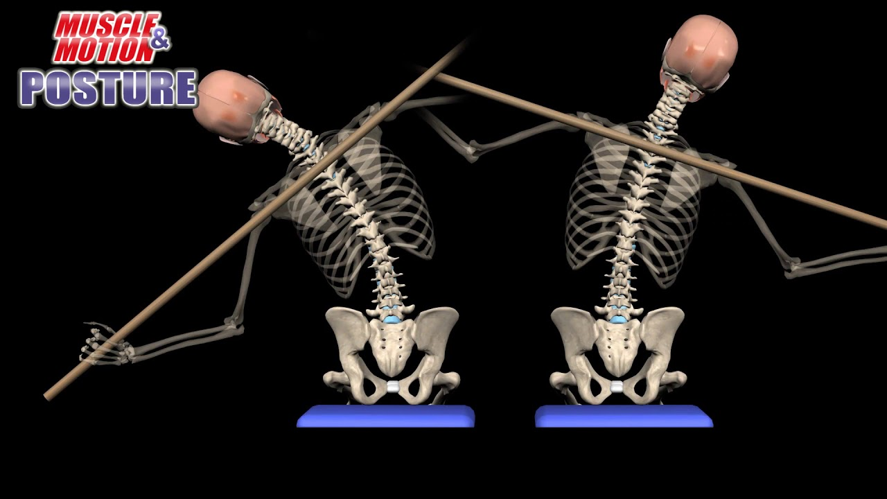 Lateral Flexion - Postural Assessment - YouTube