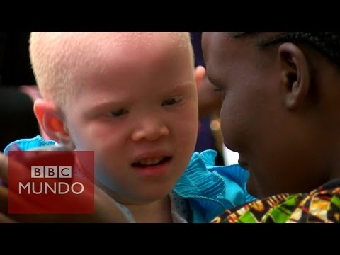 """Albinos en Tanzania: """"nos estan matando como animales"""" - BBC Mundo"""