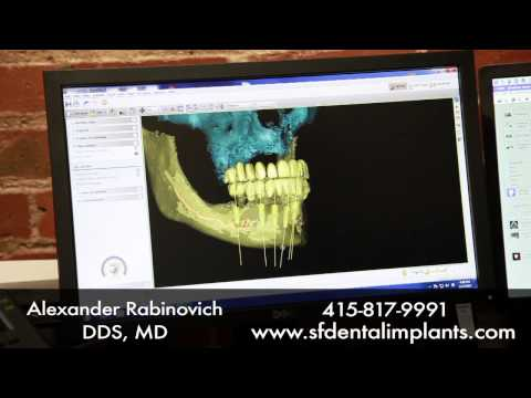 Meet Dr. Alex Rabinovich, a Leading Oral Maxillofacial Surgeon for Dental Implants in San Francisco