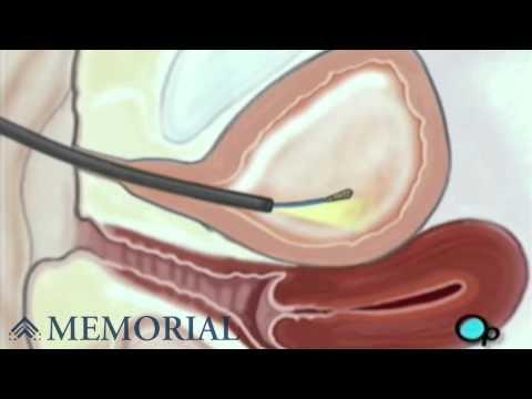 cystoscopy-female-surgery