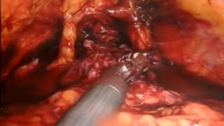 Robotic radical cystectomy in a man - video 2/5