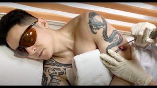 Tattoo removal session 2 at clara international aesthetics natural