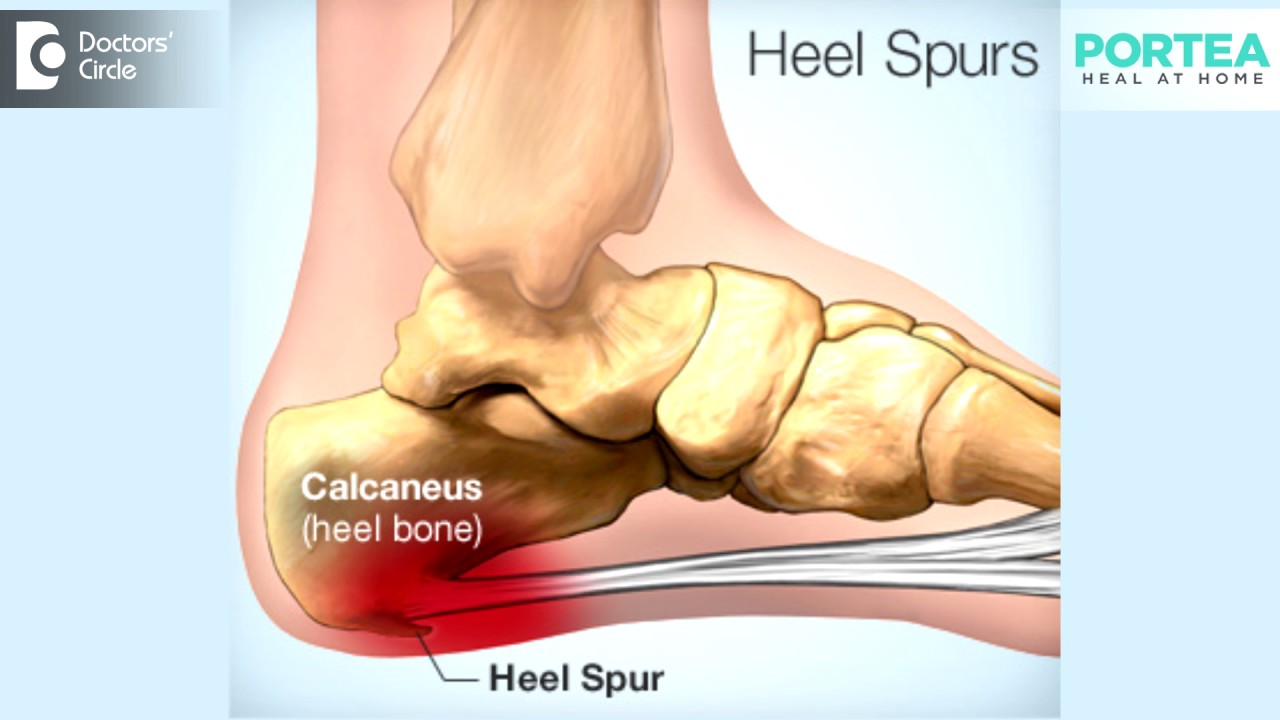 What are the effects of untreated heel spurs? - YouTube