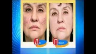 Лазерное лечение сосудистой сеточки на лице(, 2015-09-16T15:35:18.000Z)