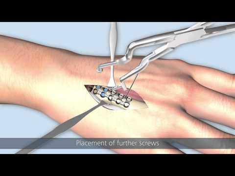 Linos – Transverse fracture of a metacarpal bone