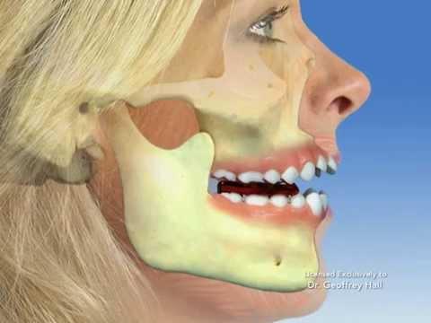 TMJ - Temporomandibular joint dysfunction