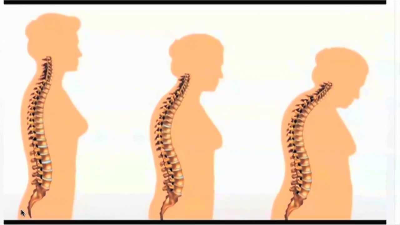 Quot Osteoporosis Education Quot Online Course Http