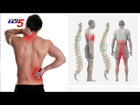 Cervical And Lumbar Spondylosis Causes And Treatment | Homeocare Hospitals | Good Health | TV5 News
