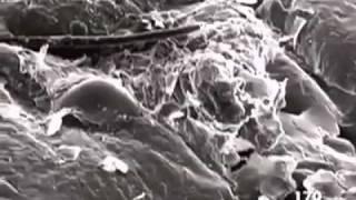 Hiç derinizi mikroskop altında incelediniz mi!