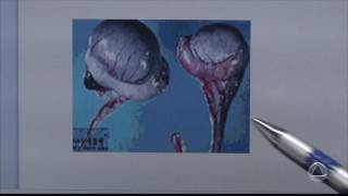 Varicocele o imagens de hidrocele e que é