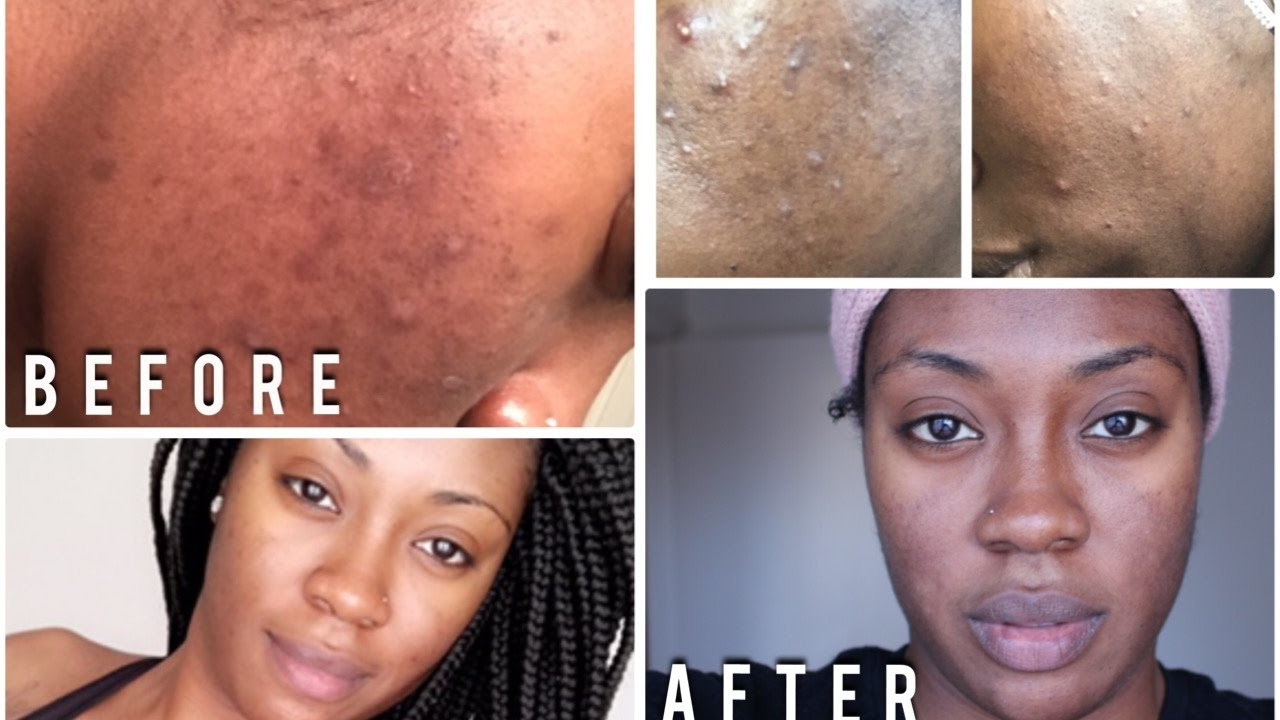 *Updated* Skin Care Routine How to get Rid of Acne & Dark Spots