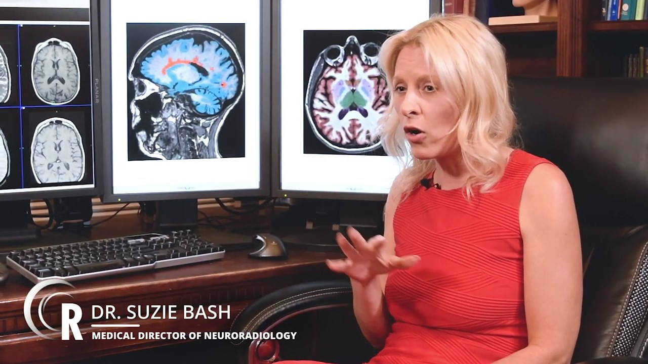 Patient Benefits from AI in Neuroradiology - Dr  Suzie Bash
