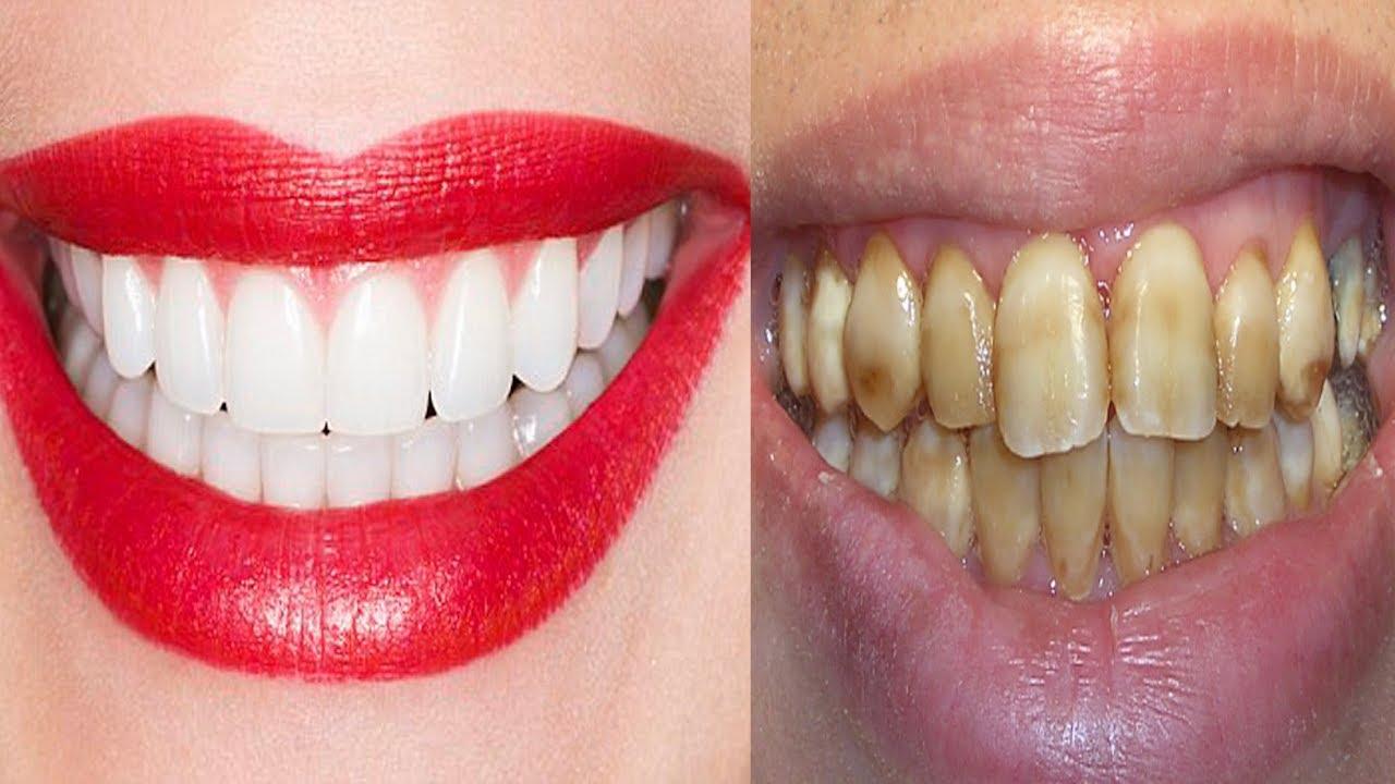 Ela Misturou 2 Ingredientes E Passou Nos Dentes Resultado Dentes