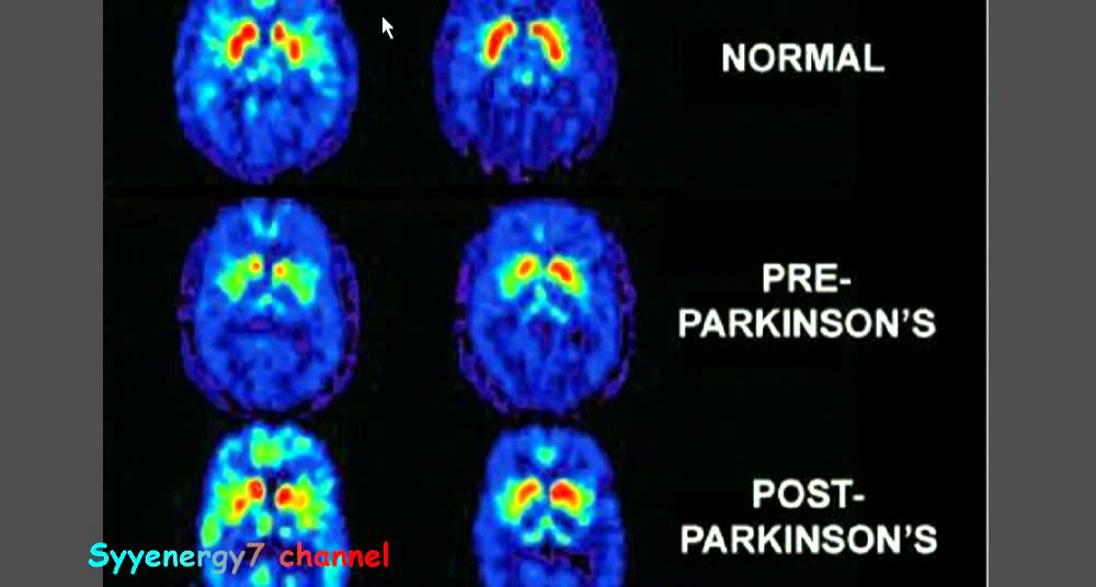 an analysis of the depletion of dopamine and the brain resulting parkinsons disease