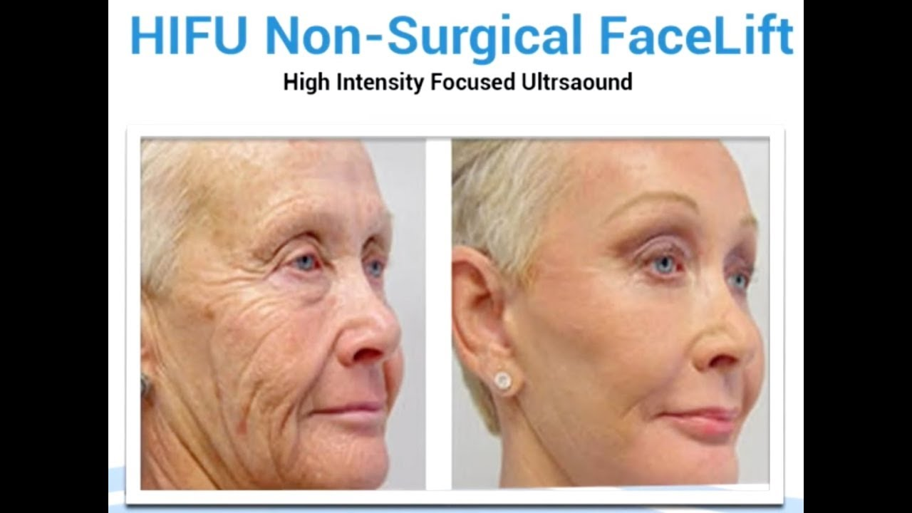 Get your youthful wrinkle-free skin beck with HIFU ...