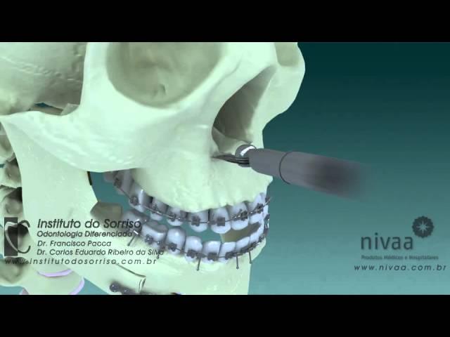 Cirurgia Ortognática Bimaxilar