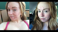 Acne progress vlog | Week 5