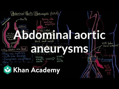 Abdominal aortic aneurysms   Circulatory System and Disease   NCLEX-RN   Khan Academy