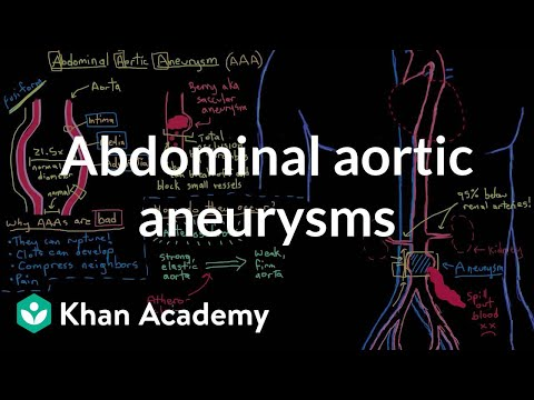 Abdominal aortic aneurysms | Circulatory System and Disease | NCLEX-RN | Khan Academy