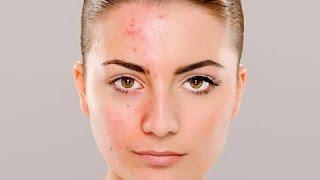 3 стадии акне: причины и этапы лечения