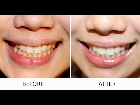 Teeth Whitening at Home   Charcoal Powder and Strips