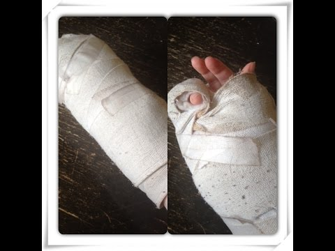 Hand Surgery Journey