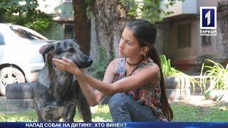Собака покусав дитину: хто винен?