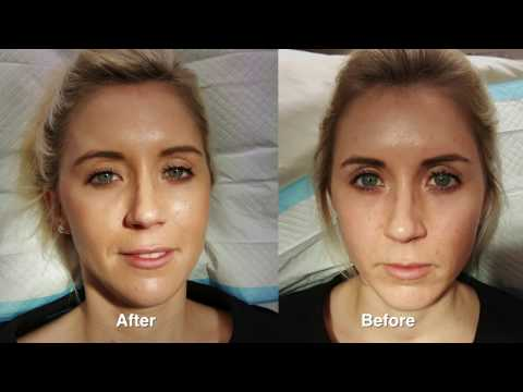 Juvederm rejuvenation w/ Before & After Pictures - YouTube