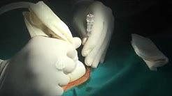 hqdefault - Biopsy Of Transplanted Kidney Cpt Code