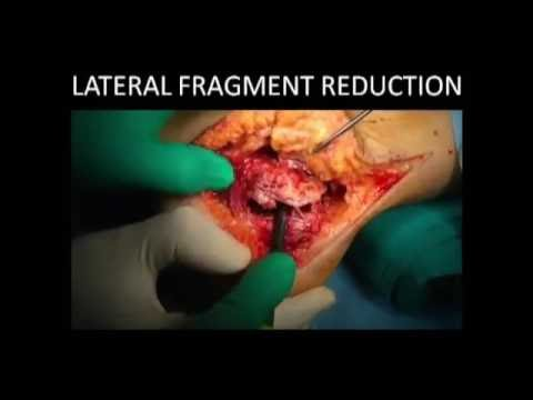 Calcaneal Fractures  Evaluation and Surgical Treatment