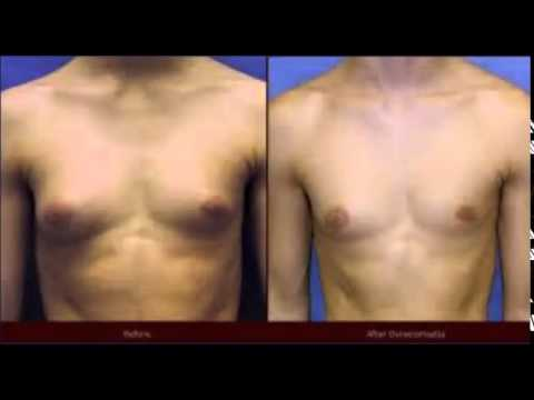 Should i lose weight first before trying to build muscle photo 7
