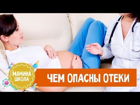 Отеки при беременности. Что делать?